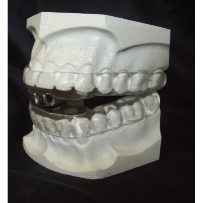 MDSA Dental Sleep Appliance