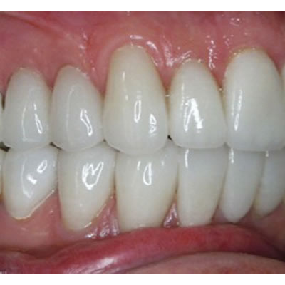 BURBANK DENTAL LABORATORY - CAD/:CAM RESTORATIONS